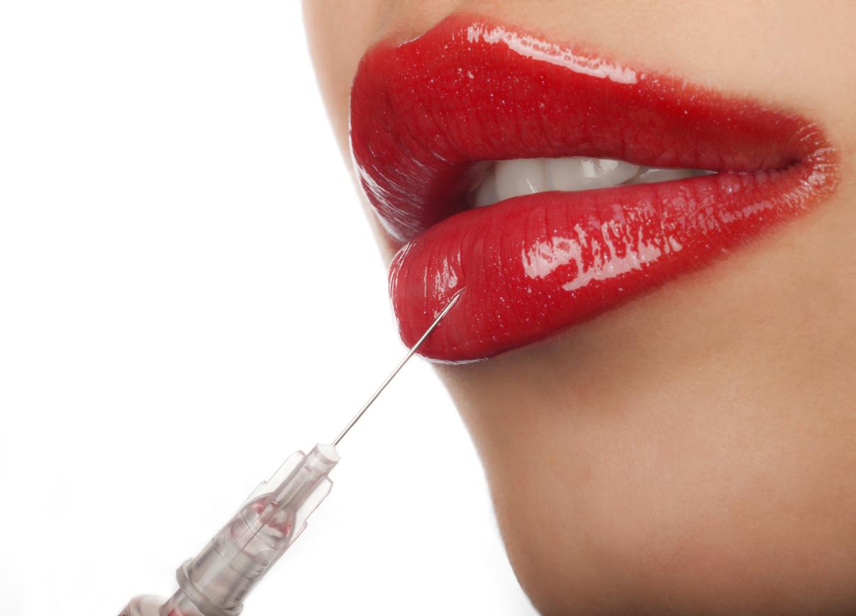 보톡스·필러 등 쁘띠성형 시술 비용이 5만원대로 떨어지자 명품 립스틱 구매 대신 쁘띠성형으로 불황시대의 자기만족을 추구하는 여성이 늘고 있다.