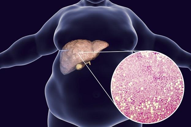 중증 지방간에 해당할 경우에는 종양성 용종일 가능성이 상대적으로 높은 5mm 이상의 큰 담낭 용종 발생 위험이 최대 2.1배까지 상승한다. 사진 출처 게티이미지뱅크